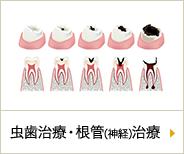 虫歯・根管(神経)治療