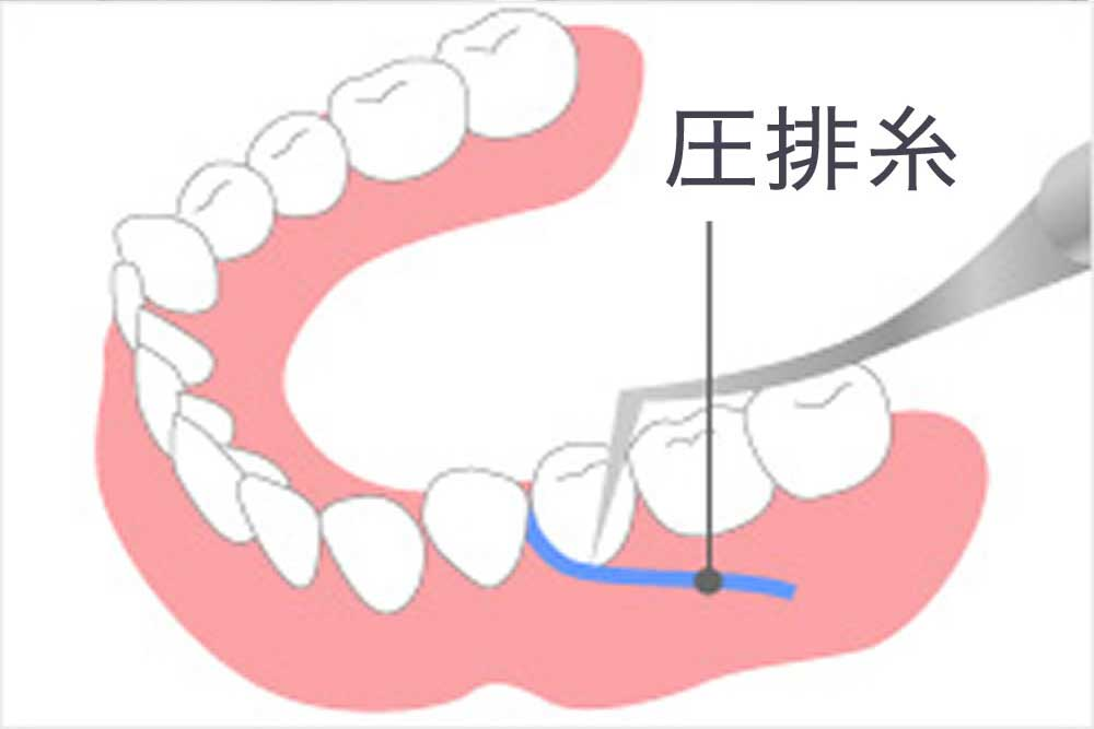 歯肉圧排(しにくあっぱい)
